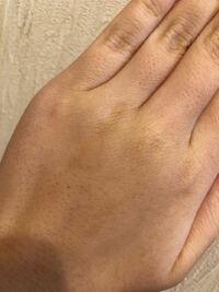 sarlisiの脱毛器を検討しています、 このようは毛穴?埋没毛?は治って綺麗な手にはなれるでしょうか(TT)
