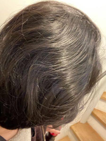 髪の毛のケアをしてるのにこんな感じでボサボサで髪を撫でるとザラザラなんですけどどうゆうヘアオイルやシャンプー、コンディショナーを使えばいいですか? 髪は染めたことないです