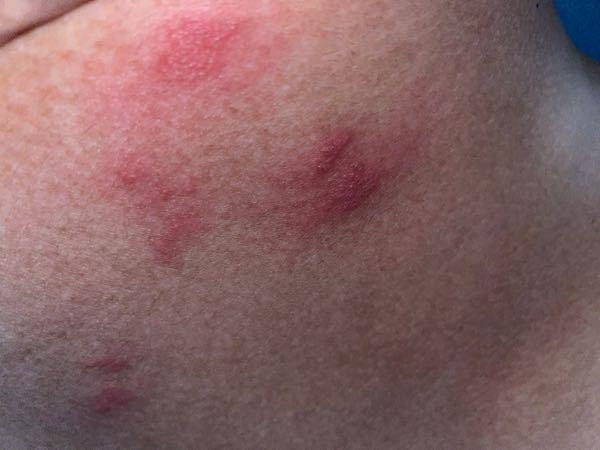 背中やお腹に急に痒くなり、気付いたら画像のように赤く腫れていました。2日ほど放置したのですが、腫れは引いていません。 写真ではあまり確認できないかもしれませんが、赤い腫れの中心辺りに小さい黒い点...