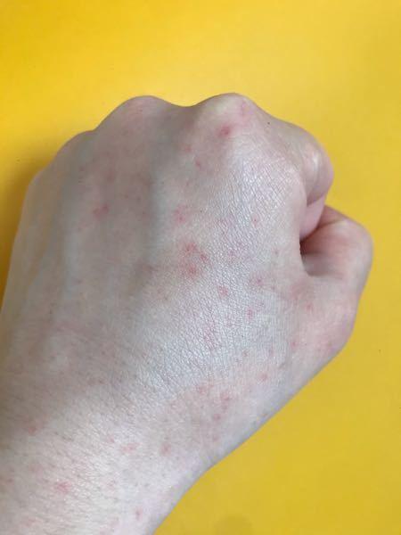 写真閲覧注意です。 手の甲に昔から赤い斑点があります。 顔や皮膚の薄い部分も同じくあります。 痛みや痒みは全くありません。 たまに落ち着いたり、赤くなったりします。 よく見ると赤い毛細血管です。 毛