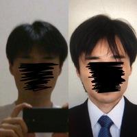 1ヶ月で写真左→右の状態まで髪が伸びるのは早いですか?