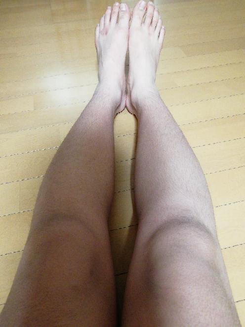 男にしては少し珍しいO脚 どうやって治せばいいのか? 制服の採寸の際に母親に足短くなったねぇと言われてガチで焦っています。