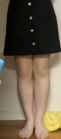 この足の太さで膝が出る丈のスカートを履いていたらみっともないですか?