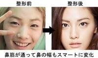 韓国『アフタースクール』ナナ は、整形して世界で一番美しい顔No. 1に選ばれたそうです。 どう思われますか?