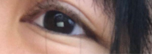 10代女子です。10代なのに目の下にこのようなシワがあります。これを消したいのですがどのようなマッサージをしたらいいですか?そして整形手術でこれを治すことは可能ですか?