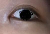 目頭切開を受けて約3週間です。 まだ目頭には傷が赤く目立つのですが、目頭の下?に縦に線が入ってるのがとても気になります。メイクをしてもそこだけ浮いてしまう感じです。 傷は写真より実際の方が目立ちます。 このような傷は日にちが経つにつれ治ってくるのでしょうか?