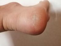 バレーボールしてます。入部してからですが、これは何ですか?(踵の部分です。) 皮が固まったような感触があるのですが、治す方法はありますか?触ったり、スポーツをしていて痛いです。