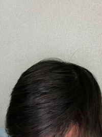 薄毛の人に似合う?(ボリュームを少し持たせたい)パーマってありますか?自分は20歳なのですが髪が細く、量も普通と比べると少ない??です。髪が細くサラサラなので常にぺったんこで風呂や雨で髪が濡れると髪...