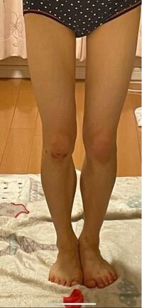 148cm32kgでこの足です。 ふくらはぎの内側がぽっこりしていて、筋膜リリースやマッサージ、ストレッチも毎日欠かさず行っていますが全く細くなりません。どうしたら細くなりますか?