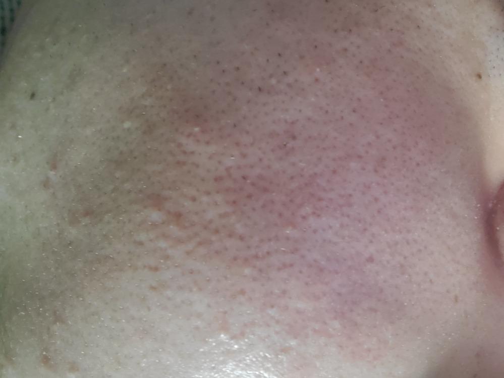 毛穴の黒ずみ、赤みがひどいです これはニキビあとなんでしょうか?