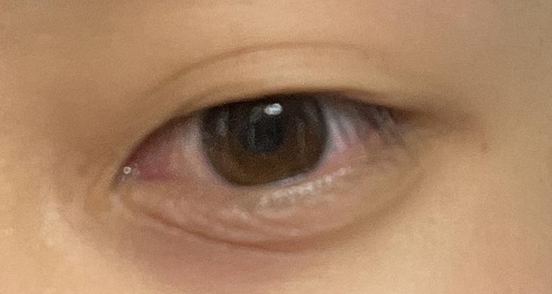 20歳男です。右目の下を爪で掻きすぎてカサついたような肌になったのが1ヶ月ほど前で、カサつき? はもうほとんど治ったのですが目の下のこの線がずっと消えません。どーやった消せますか