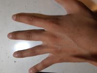 中学生男子です。自分の手の甲が周りと比べてしわしわな気がするのですが肌が黒いだけで気のせいでしょうか? 老人のように見えますか?