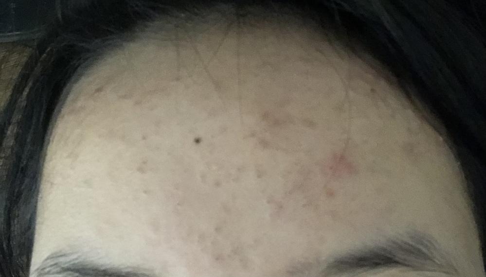 汚画像すみません。 まだ高校生なのにおでこにぶつぶつが沢山できて、毛穴も汚いです。1年くらい前はスベスベで綺麗な肌だったのに。気になりすぎてスクラブ?とかも試して見ましたがダメでした。鏡で自分の肌を見る度に嫌になります。どうすれば改善できますか?ダメとわかっていてもむず痒くて触っちゃいます。