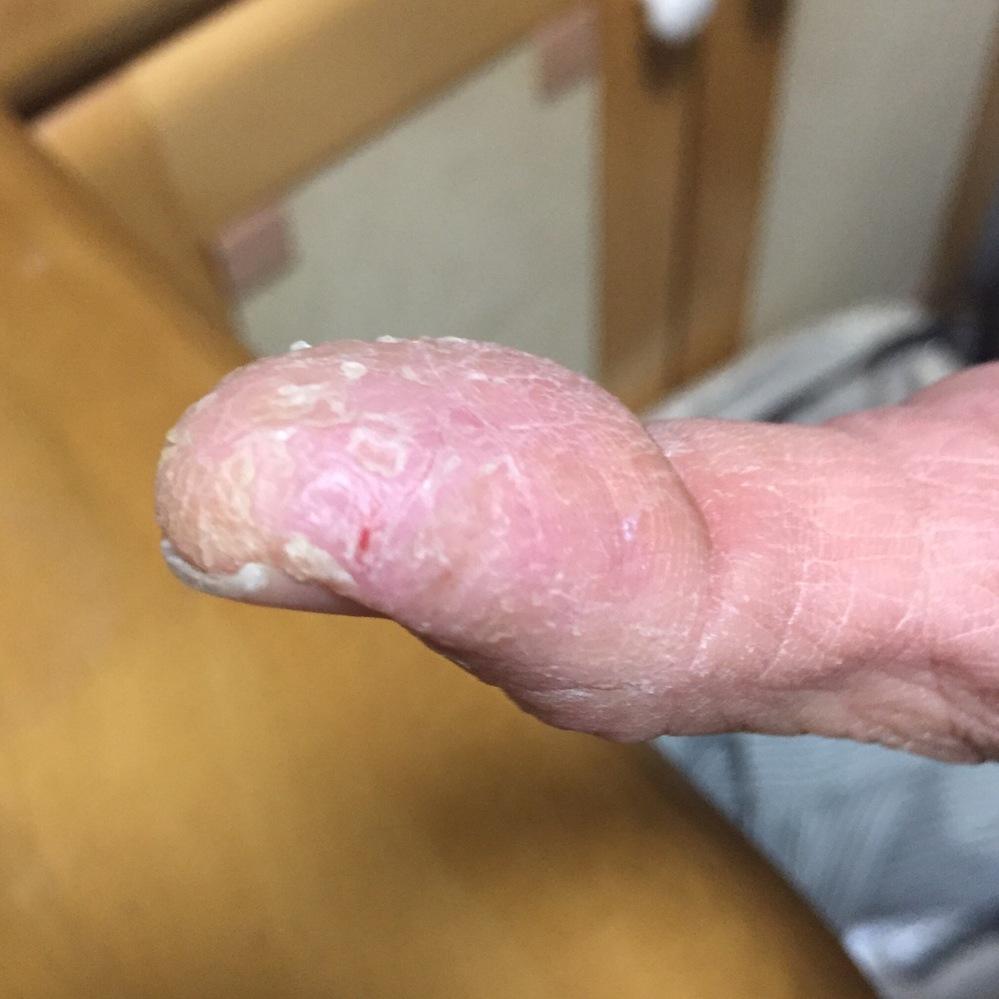 これって何でしょう? 手荒れかと思っていたけど、ヒビケアを付けたら返って切れてしまいました。 それもすぐ。 かゆくないです。 切れたところが痛いです。 皮膚が硬くて割れます。