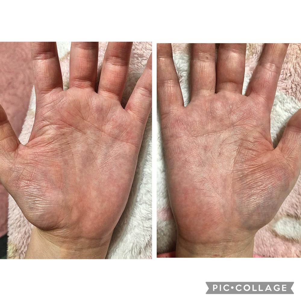 手相見れる方、お願いしますm(_ _)m 23歳女です。手湿疹持ちです。写真を撮った時は湿疹はあまり出てなかったです。