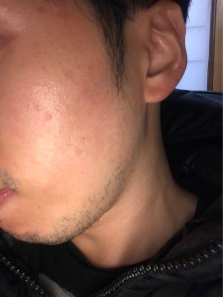 化粧水乳液を選ぶには 男性 32歳 化粧水 乳液を何使ったらいいかわかりません。男性用などの清涼感あるやつは苦手です。 肌悩みは、頬のブツブツと乾燥です。シミもあるので改善したいです。オススメあ...