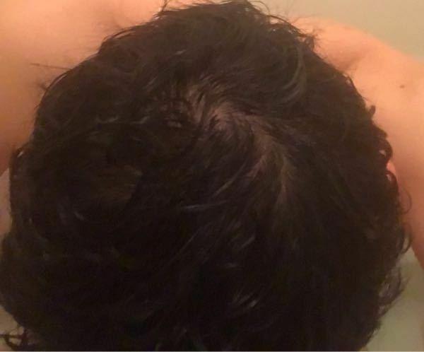 髪の分け目をクシで作っていた部分や頭頂部がこんな感じです。一般的に見て禿げていますよね? クシを頻繁に使うのは良くないのでしょうか