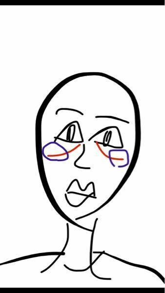 目頭からほっぺ??にかけて線が入ってて とてもコンプレックスです。なお仕方ありますか? 青のところはなんかふっくらしててマスクした時にくい込むのでいやです。。 下手ですけど書いてみました。 改善方法ありましたら教えていただけると嬉しいです。