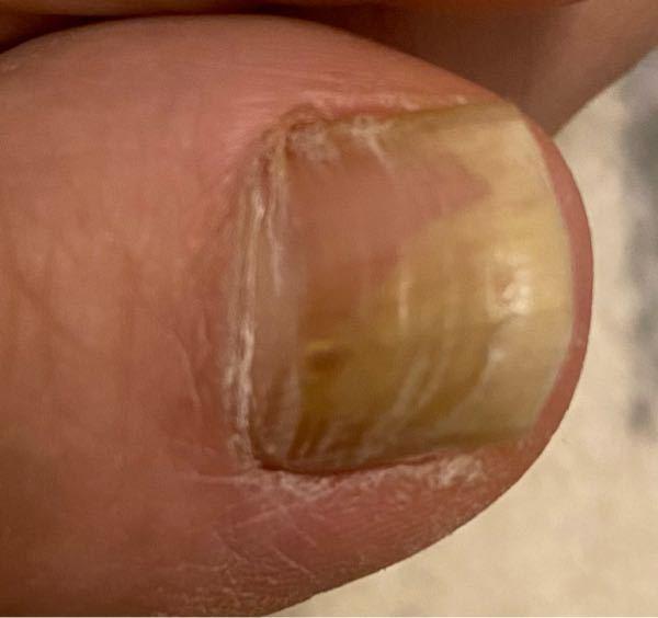 閲覧注意です!旦那の爪、これ水虫ですか?水虫じゃないの?といっても、かゆくないし、ちがう、といい病院いきません! 五か月前に気が付いたと。表面が亀の甲羅みたいです。つるっとしていません。 見かね...