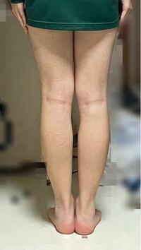 高校生です。この脚見て太いと思いますか? 本気の本音をお願いします。