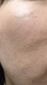 汚い写真ですみません。  朝化粧をして、仕事中マスクで過ごし、昼にマスクを取るとこうなっています。 頬の写真です。 これはマスクで擦れてファンデーションが剥げているのでしょうか? それとも乾燥によるものですか?   乾燥肌です。 洗顔後にハトムギ化粧水、キュレル乳液をつけてしばらく置き、化粧をします。  ベースは ①ポール&ジョーのモイスチュアライジングファンデ...