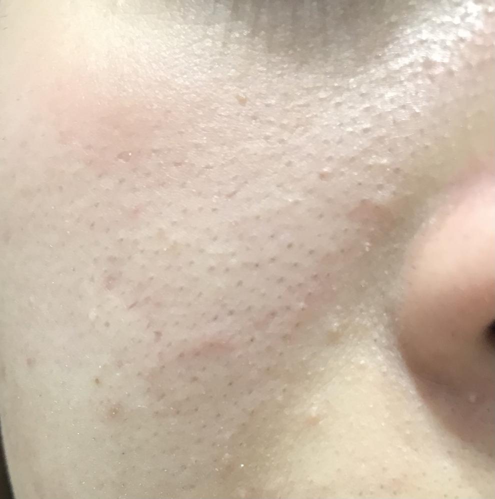 ⚠️肌汚いです、すみません。 毎日顔を洗ってるんですけど、鼻横の所の毛穴汚れ?が無くなりません…治し方を教えて欲しいです、出来れば原因もお願いします。