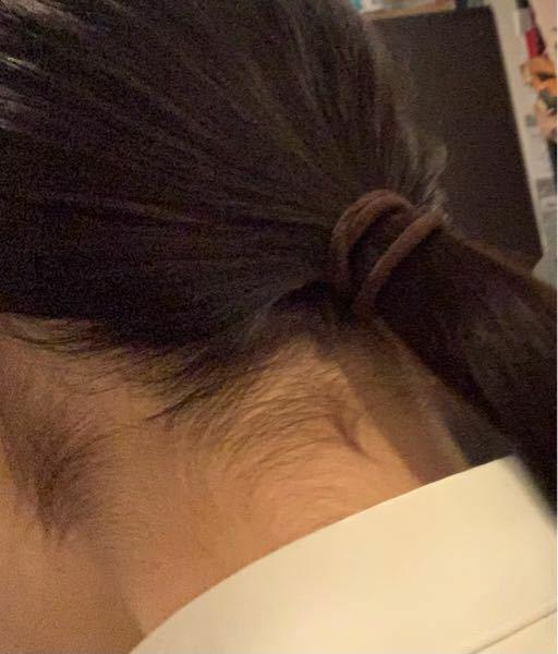汚い写真すみません。このうなじは濃いですよね? 学校で髪を結ばなければならない校則なのに結ぶと汚いうなじが見え恥ずかしいので困ってます。 どうすれば良いですか?