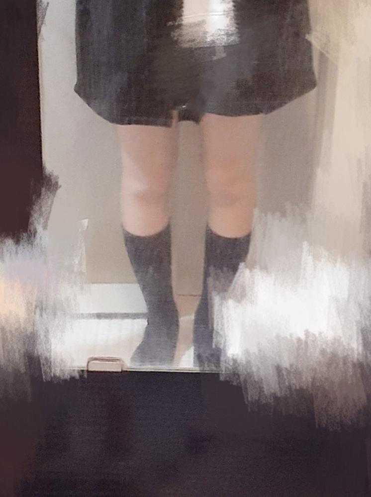 お見苦しい画像すみません。この脚で画像の長さのショートパンツを履くのはどう思いますか? 自分ではもう少し痩せた方がいいかなと思うのですが、客観的に見てどうですか? 脚太いのにショートパンツなんて、と思われるでしょうか。ちなみに昔から極度のO脚です。