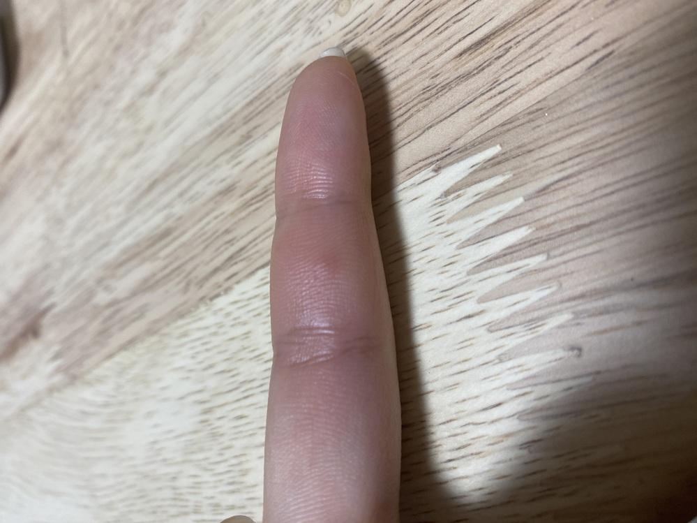 虫刺されだと思うのですが顔や腕、指などに腫れがでてパンパンになり硬く、熱を持っていて痛みがあります。 なんの虫かどなたかわかる方はいらっしゃいますか…画像では伝わりにくいと思うのですが… 最近...