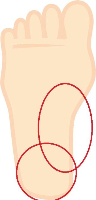 水虫に詳しい方教えて下さい。 最近になって右足の足裏(画像の赤丸した場所)が痒くて困っています。 そこで以前から使ってたムヒソフトを塗ったところ痒みがピタッと止まりました。 クスリの事はさっぱ...