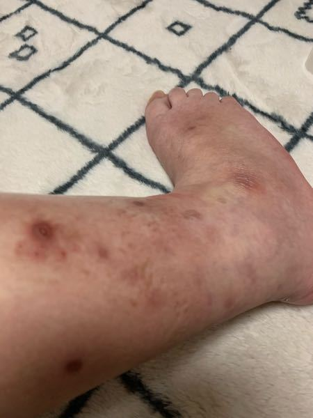 20代前半女です。 2年ほど前から皮膚炎が良くなりません。 皮膚科も4つ回って最近杉アレルギーと診断されました。 アレルギーでここまでなるのでしょうか? 足首と手指がこんな感じで本当にコンプレッ...