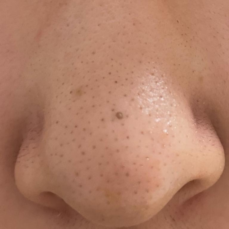 ご覧の通り鼻がきったないです 治し方を教えてください… また、美容皮膚科に行かなくては行けないとしたらどういう施術をすればいいのか教えてください。 真ん中の大きいのはいじって開いてしまった毛穴です。これは無くなりますか? ご回答よろしくお願いします