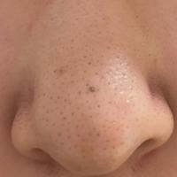 ご覧の通り鼻がきったないです 治し方を教えてください… また、美容皮膚科に行かなくては行けないとしたらどういう施術をすればいいのか教えてください。 真ん中の大きいのはいじって開いてしまった毛穴です。...