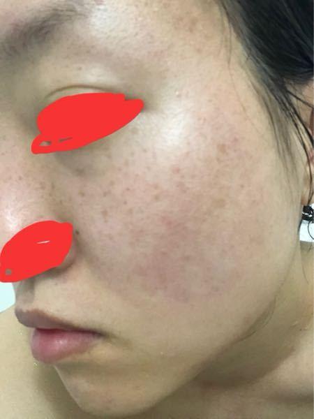 27歳になる女性です。 お見苦しい写真を失礼します。 肌の斑点は肝斑というやつでしょうか? そばかすは昔から少しだけあったのですが 二十台後半から増えて目立つように感じたので そばかすではないの...