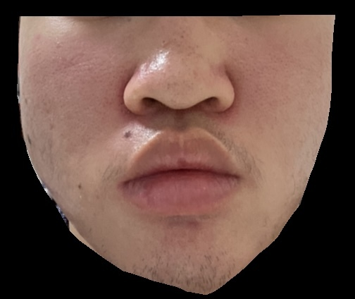 ニキビ跡?赤ら顔?についてです写真の通りです もう限界なのでクリニック等でピーリング治療やレーザー治療を受けたいと思っています。1、2年前から顔全体に赤みができてるのですが何を受ければいいですかね