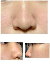 鼻がコンプレックスで整形を考えています。 鼻尖形成+小鼻縮小 か、 鼻尖形成+鼻中隔延長 のどちらがいいと思いますか? また鼻尖形成3D法もありますが、値段的に鼻尖形成のかなって思っていて、でも3D法のほうが劇的に変化できる〜って書いてあったので迷ってます、どちらがいいですか?(^^;