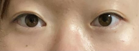 これは、瞼薄い方ですか?