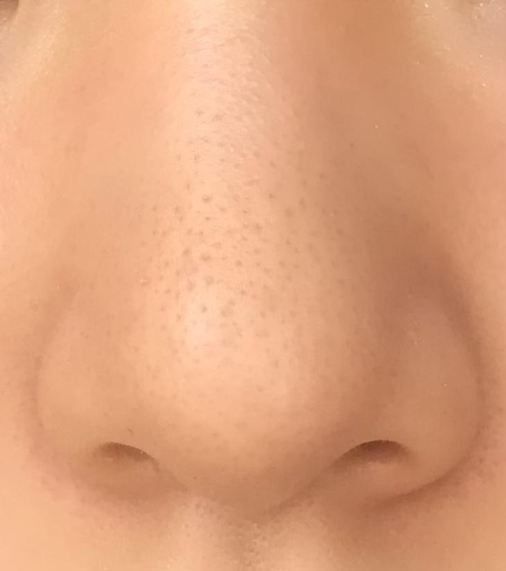 鼻の毛穴黒ずみについて…化粧後でこれです。日焼け止めと、マシュマロフィニッシュパウダーを使ってます。どうしたら治りますか?(;A;)