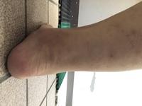 足首を鍛えたいです。 足首に筋肉をつけたら?足首は細くなりますか? 片足立ちが苦手でそういった練習などはしています。 チキン足のような足になりたい訳でもないですが、骨が出てる足首になりたいです。 筋トレとかあれば教えてくださいm(_ _)m