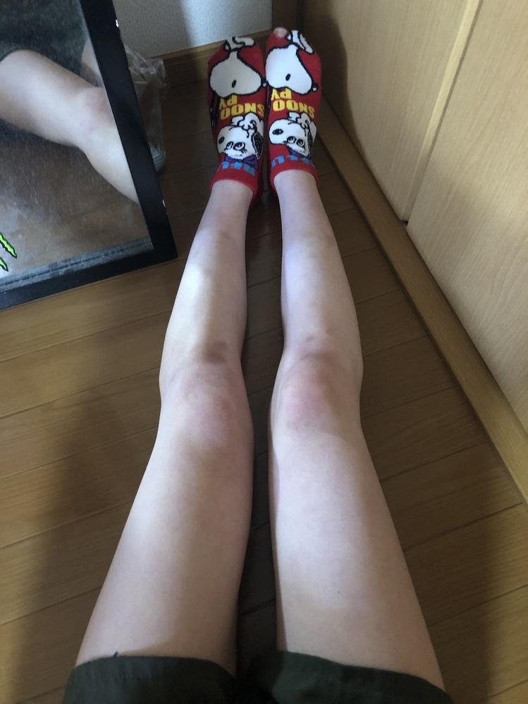 身長158cmです 足だけ見て何kgに見えますか? 上半身に比べて下半身がどっしりしてるので気になりました