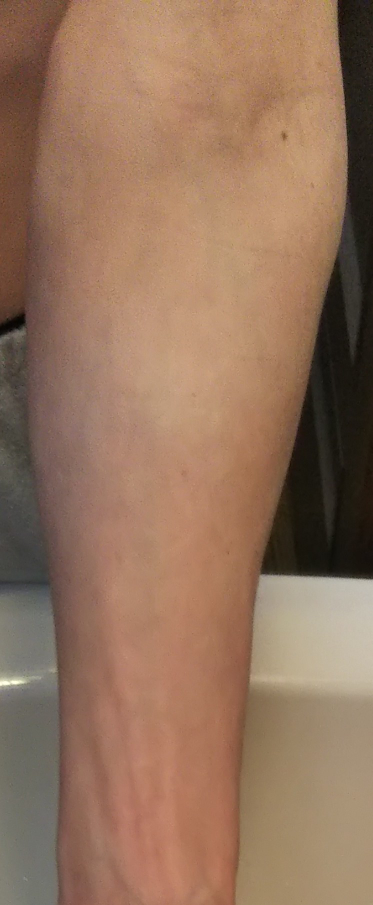 女の人に質問です。男の人の肘ですがこの腕は筋肉があるように見えますか?細いように見えますか?普通サイズに見えますか?