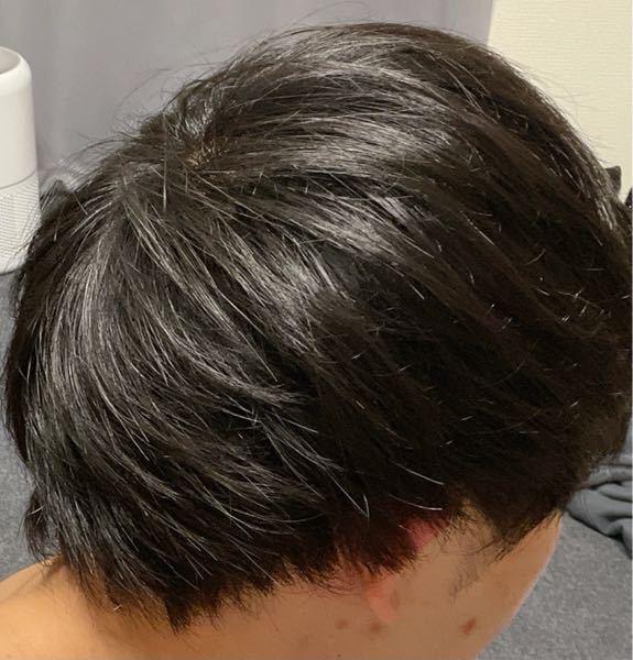 最近髪のボリュームが減ったように感じました。 これは禿げでしょうか?