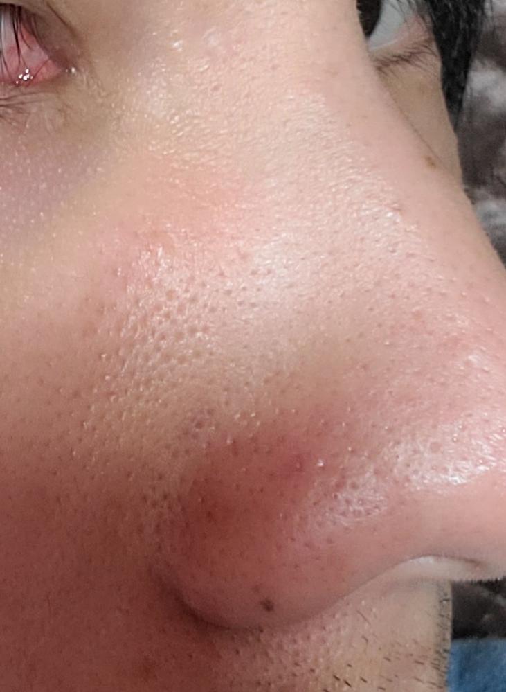 鼻や鼻横の毛穴が目立ちます。 どうしたら改善できますでしょうか。 また、これはいちご鼻というやつなのでしょうか。