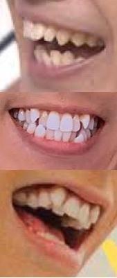 KPOPアイドルで歯並びの悪い人っていますか? 八重歯だったり、前歯が長くてリスみたいだったりする人はたまに見かけますが ↓の写真のように明らかに全部の歯並びが悪かったり、または歯が極端に黄色い人っていますか? みんな練習生時代に矯正するんでしょうか?