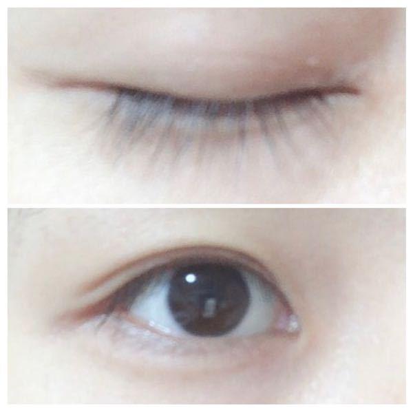 平行二重にしてみたいのですが、上手くいきません。 蒙古襞があるとできないとTwitterで見たのですが、この目は蒙古襞がありますか?
