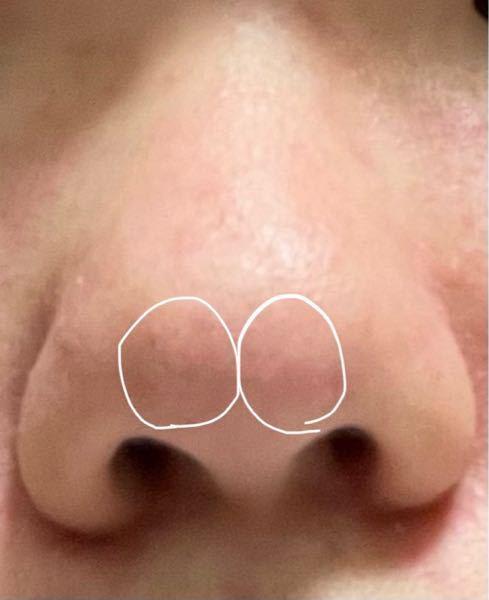 私の鼻は鼻先が割れているというか丸っこいのが2つあります。普通に見ても割れ目はよく見えません、じっくり見ると見えます。 これって普通ですか?普通じゃなければこれが出来た理由を教えてほしいです ま...