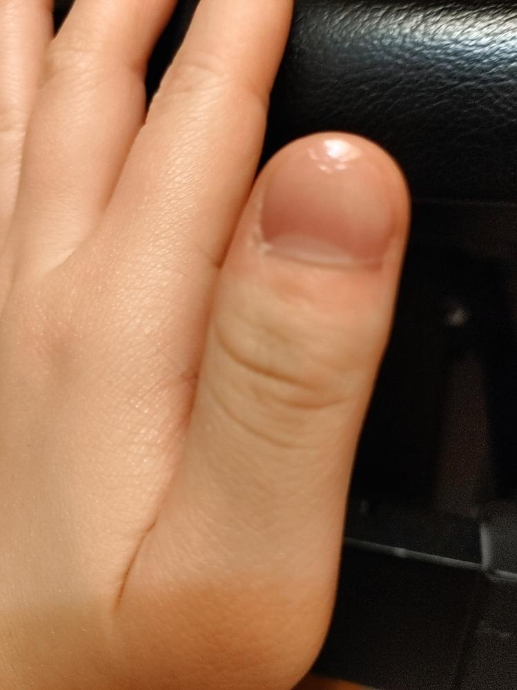 中二の女子です。 私は凄い男爪で悩んでいます... これは改善できるのでしょうか???