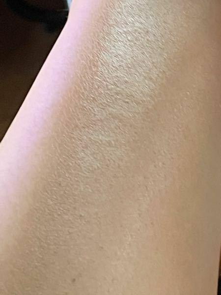 【閲覧注意】 脚なのですが、これはなに肌というのですが? もっと綺麗でモチモチな肌にしたいのですが、どうケアすればいいですか?