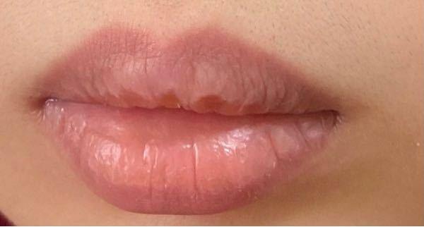 この唇はイエベっぽいですか?ブルベっぽいですか? 血色いい方ですか? 口紅やリップクリームなど塗っていません。 ご回答お待ちしております。