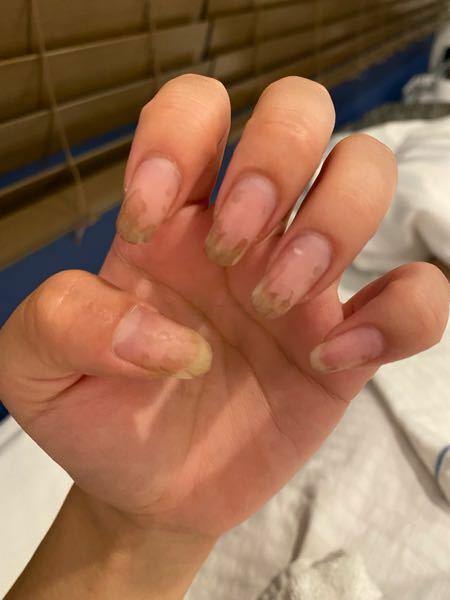 昨日ジェルネイルをオフしました。 なぜか爪が黒くなってるところがあります。 髪を染めたりなど色がつくようなことはしてません。 何が起こっているのでしょうか? またサロンに言ってみてもいいものでしょうか?